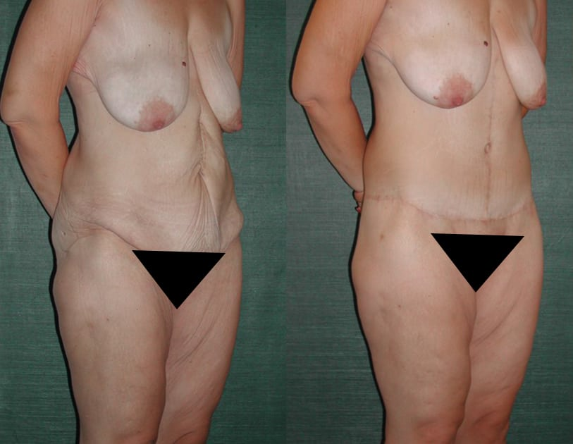 Abdominoplasty.Patient3C-1.jpg